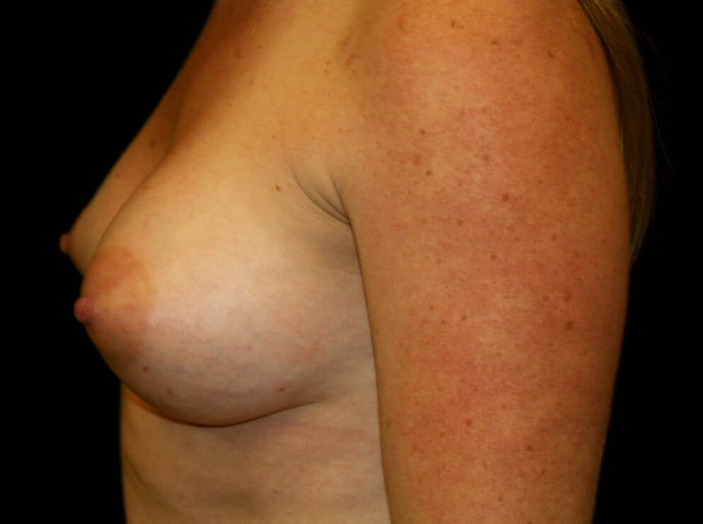 Breast Augmentation Gallery - Patient 39245575 - Image 10