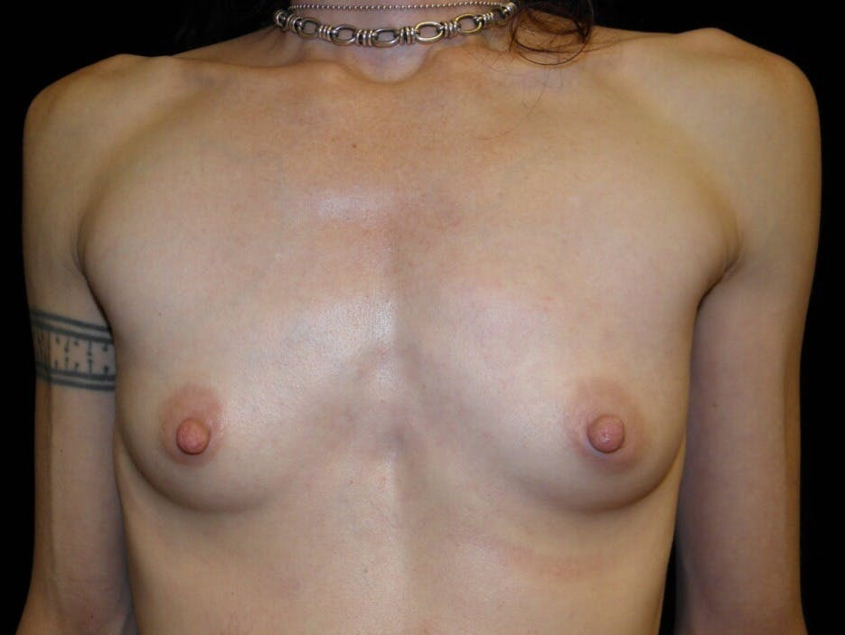Breast Augmentation Gallery - Patient 39245579 - Image 1