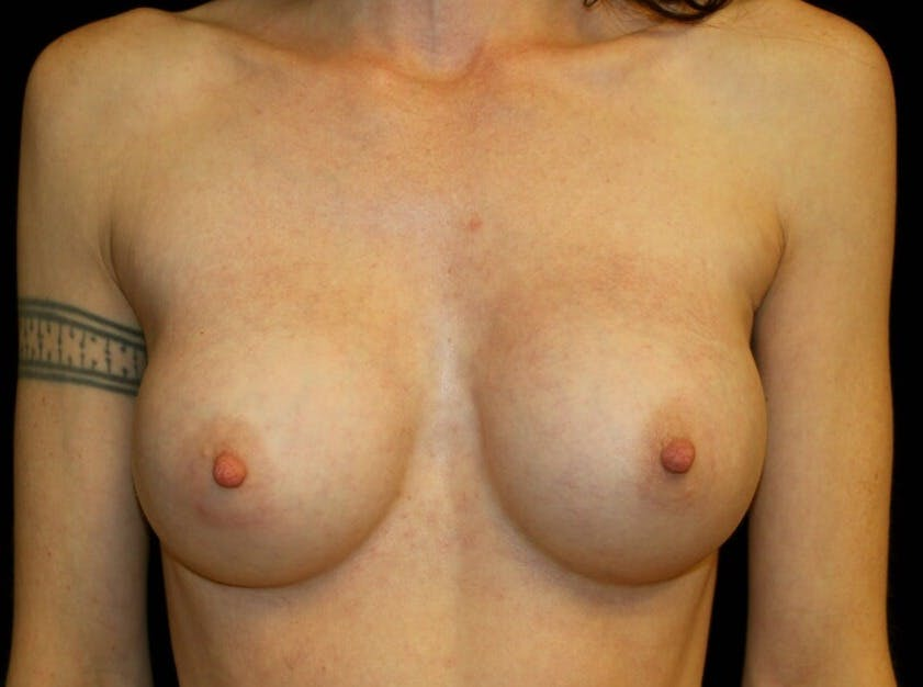 Breast Augmentation Gallery - Patient 39245579 - Image 2