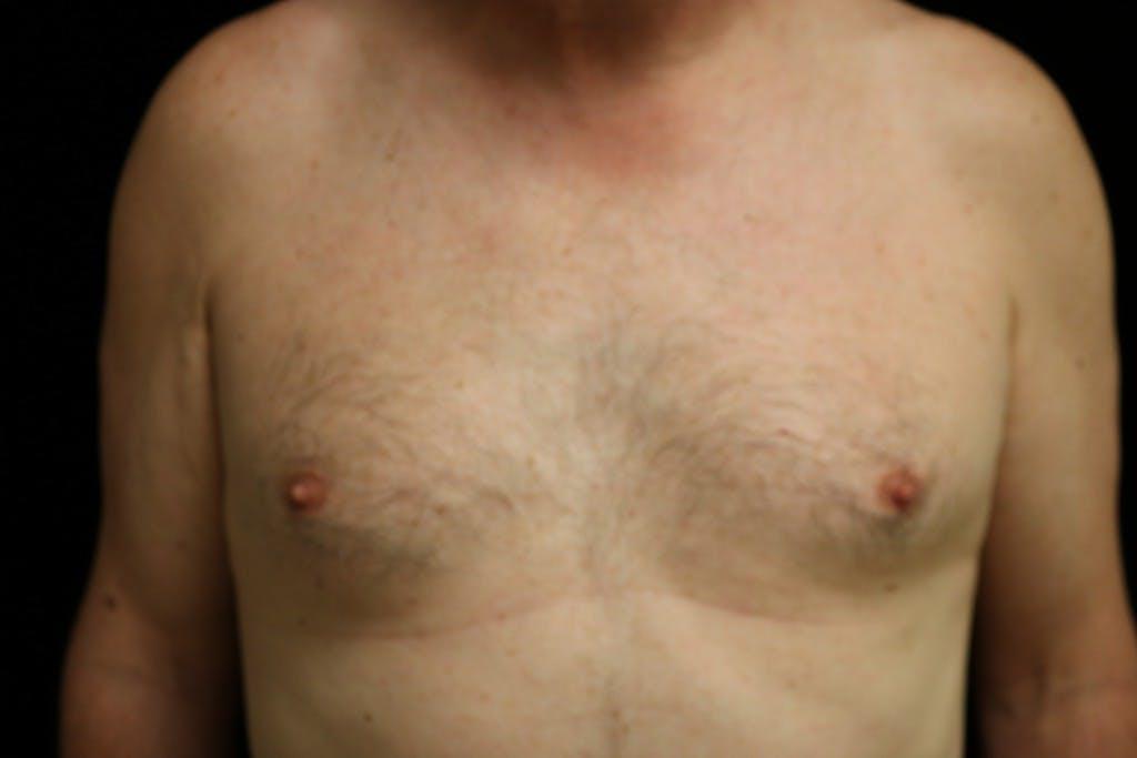Gynecomastia Gallery - Patient 39245578 - Image 1