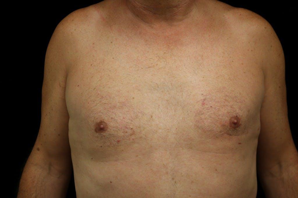 Gynecomastia Gallery - Patient 39245578 - Image 2