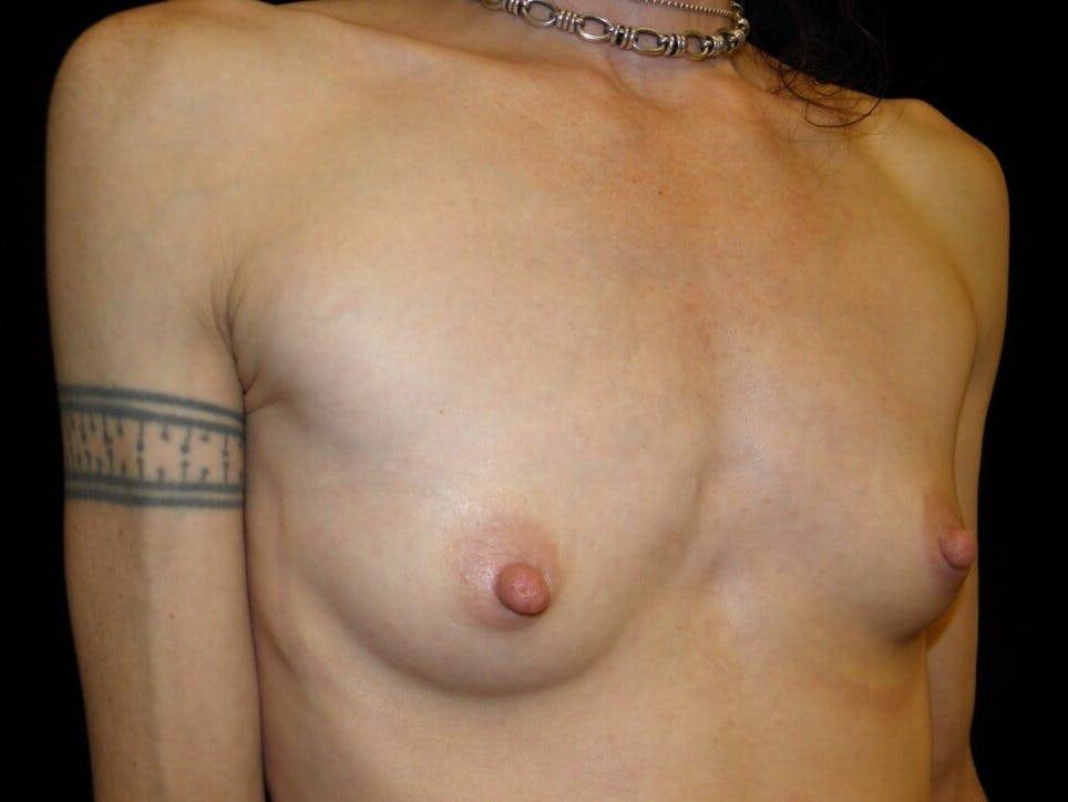 Breast Augmentation Gallery - Patient 39245579 - Image 3