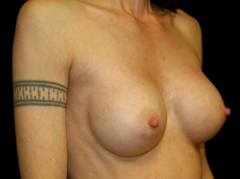 Breast Augmentation Gallery - Patient 39245579 - Image 4