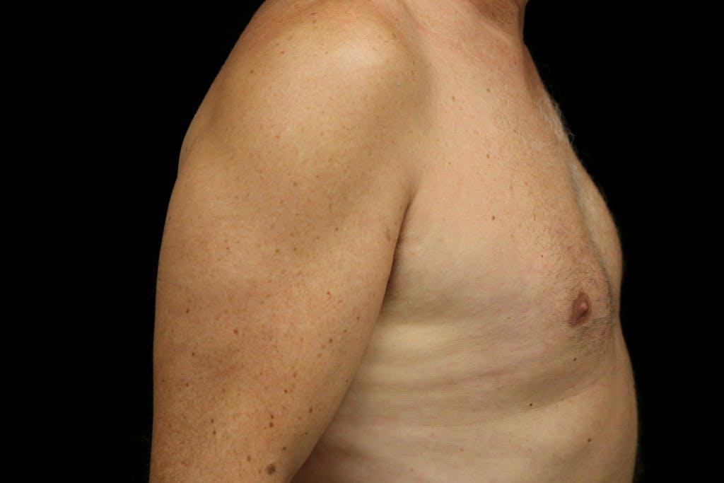 Gynecomastia Gallery - Patient 39245578 - Image 4