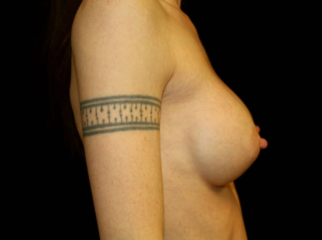 Breast Augmentation Gallery - Patient 39245579 - Image 6
