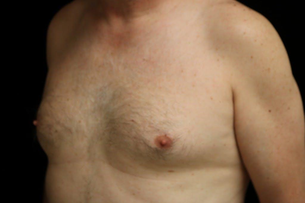 Gynecomastia Gallery - Patient 39245578 - Image 5