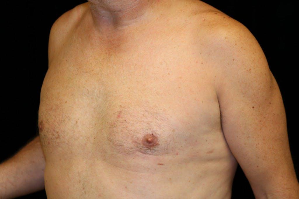 Gynecomastia Gallery - Patient 39245578 - Image 6
