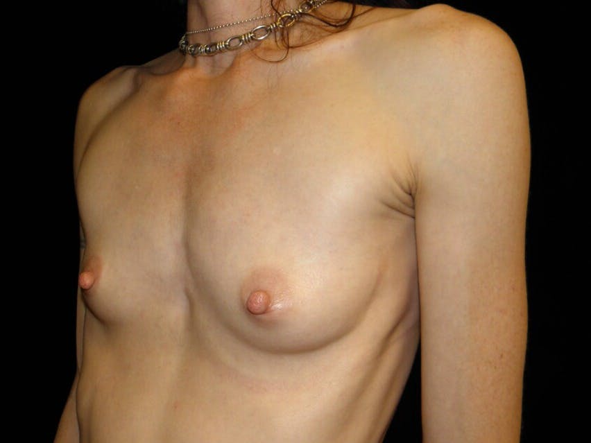 Breast Augmentation Gallery - Patient 39245579 - Image 7