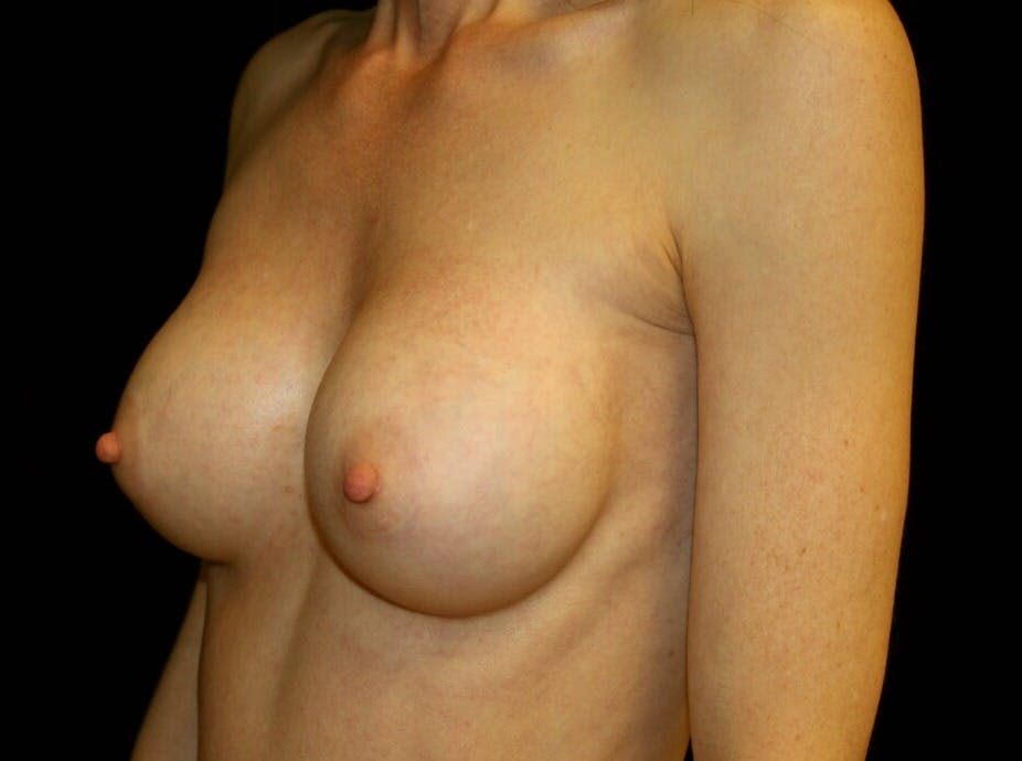 Breast Augmentation Gallery - Patient 39245579 - Image 8