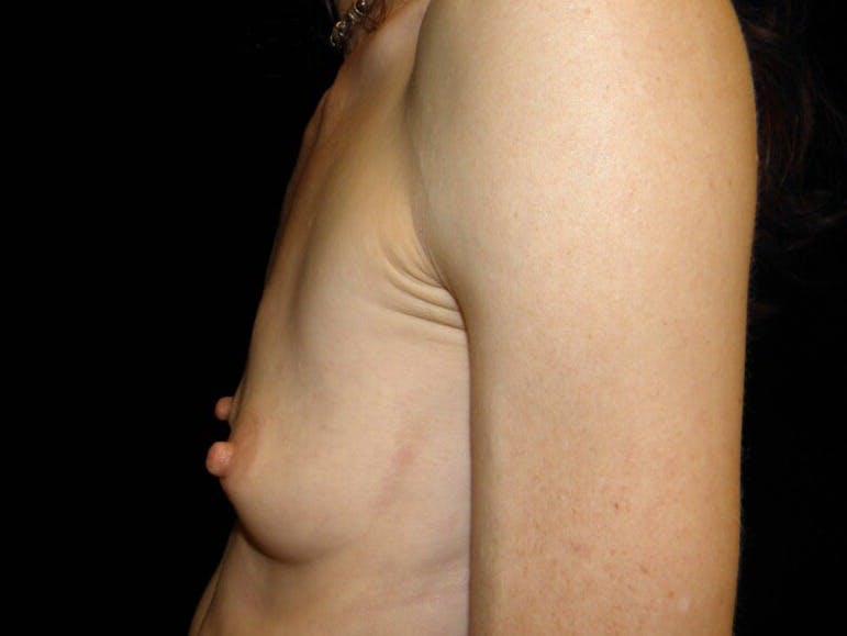 Breast Augmentation Gallery - Patient 39245579 - Image 9