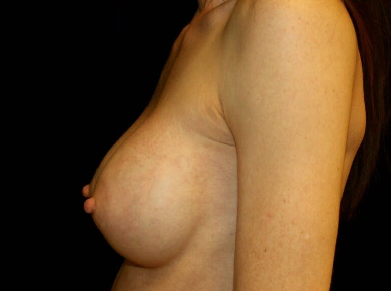 Breast Augmentation Gallery - Patient 39245579 - Image 10