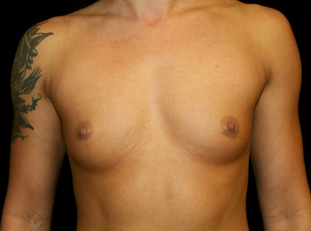 Breast Augmentation Gallery - Patient 39245583 - Image 1