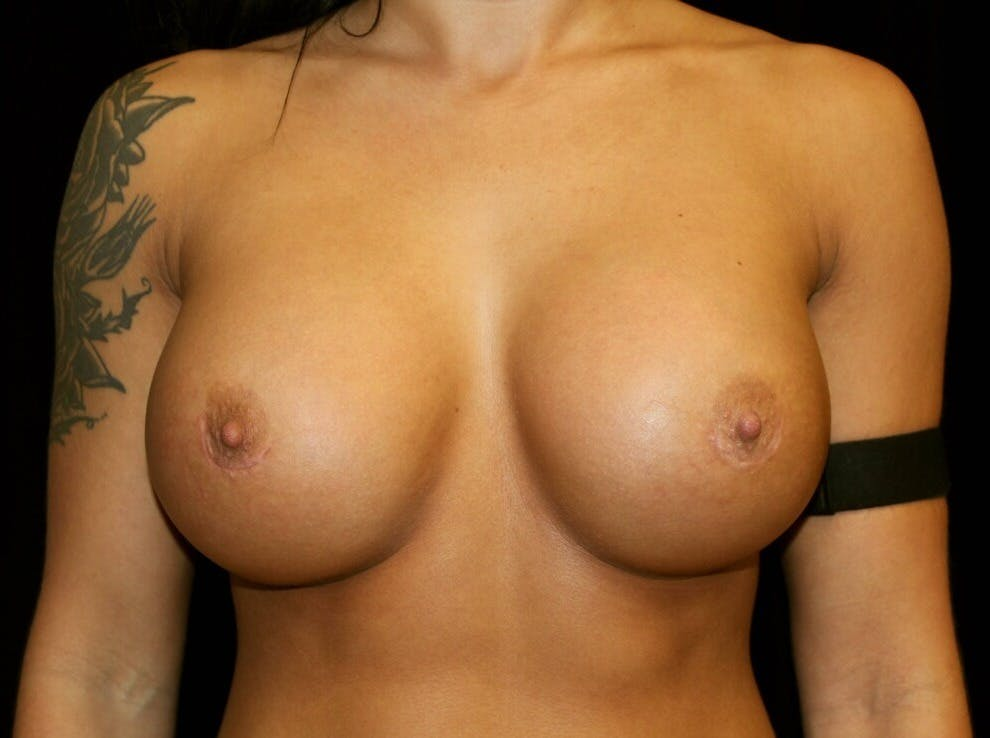 Breast Augmentation Gallery - Patient 39245583 - Image 2