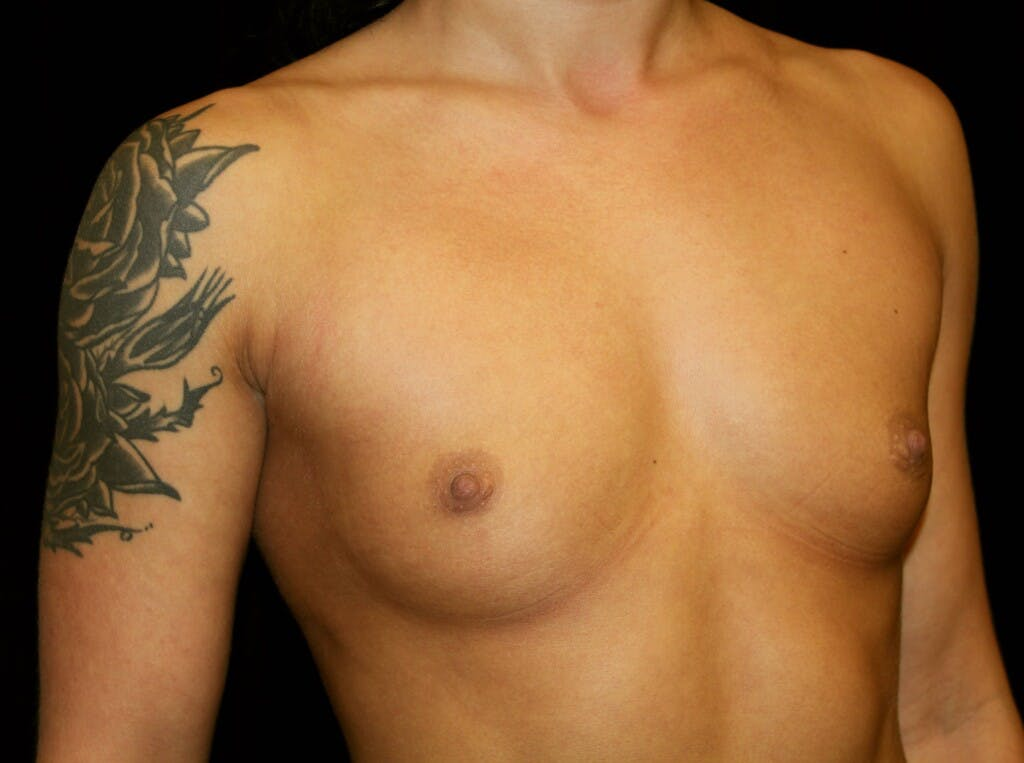 Breast Augmentation Gallery - Patient 39245583 - Image 3