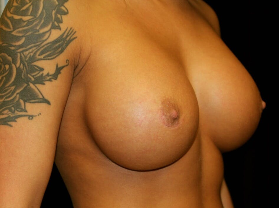 Breast Augmentation Gallery - Patient 39245583 - Image 4