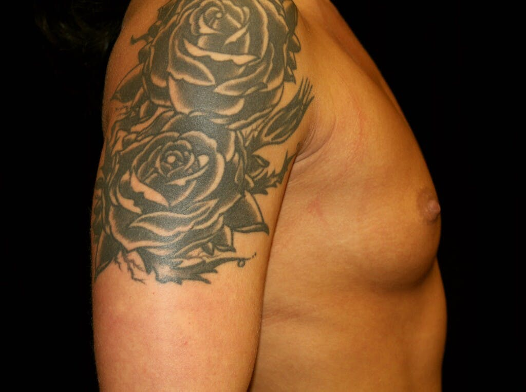 Breast Augmentation Gallery - Patient 39245583 - Image 5
