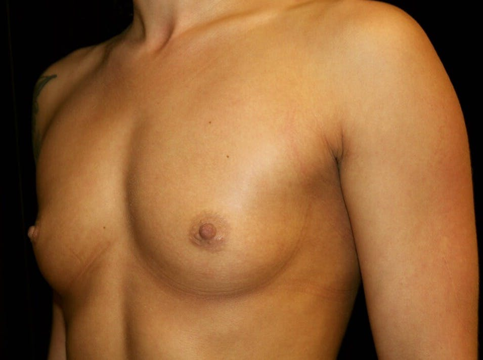 Breast Augmentation Gallery - Patient 39245583 - Image 7