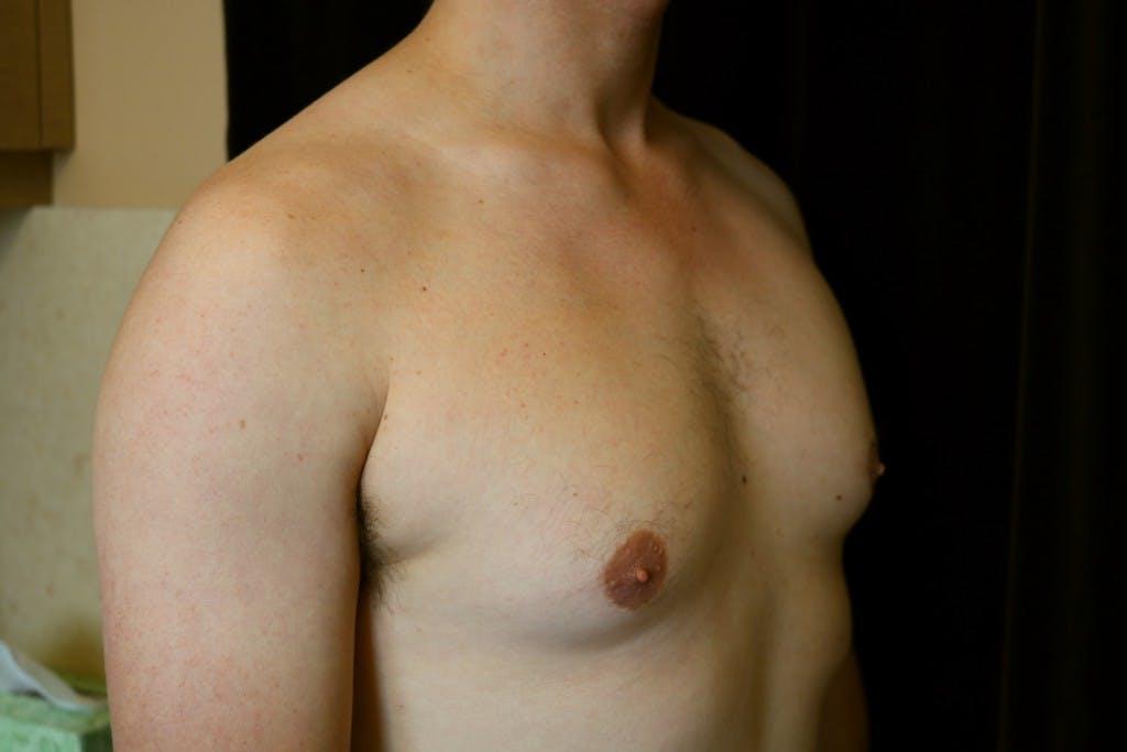 Gynecomastia Gallery - Patient 39245584 - Image 3