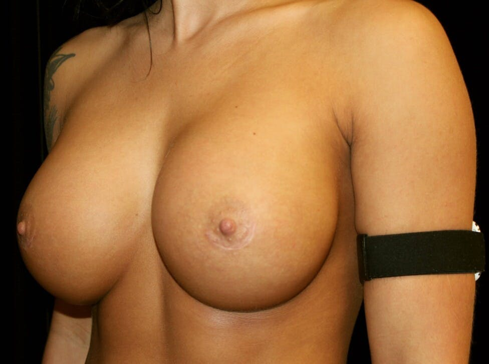 Breast Augmentation Gallery - Patient 39245583 - Image 8