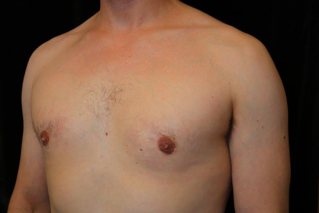 Gynecomastia Gallery - Patient 39245584 - Image 6