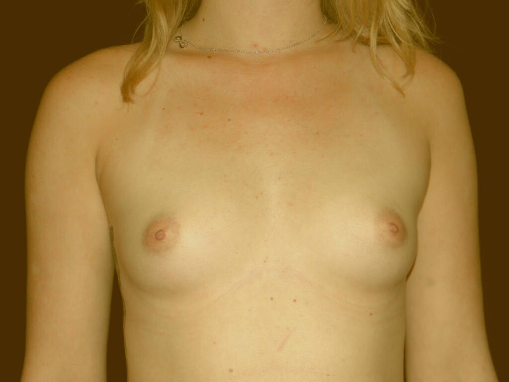 Breast Augmentation Gallery - Patient 39245585 - Image 1