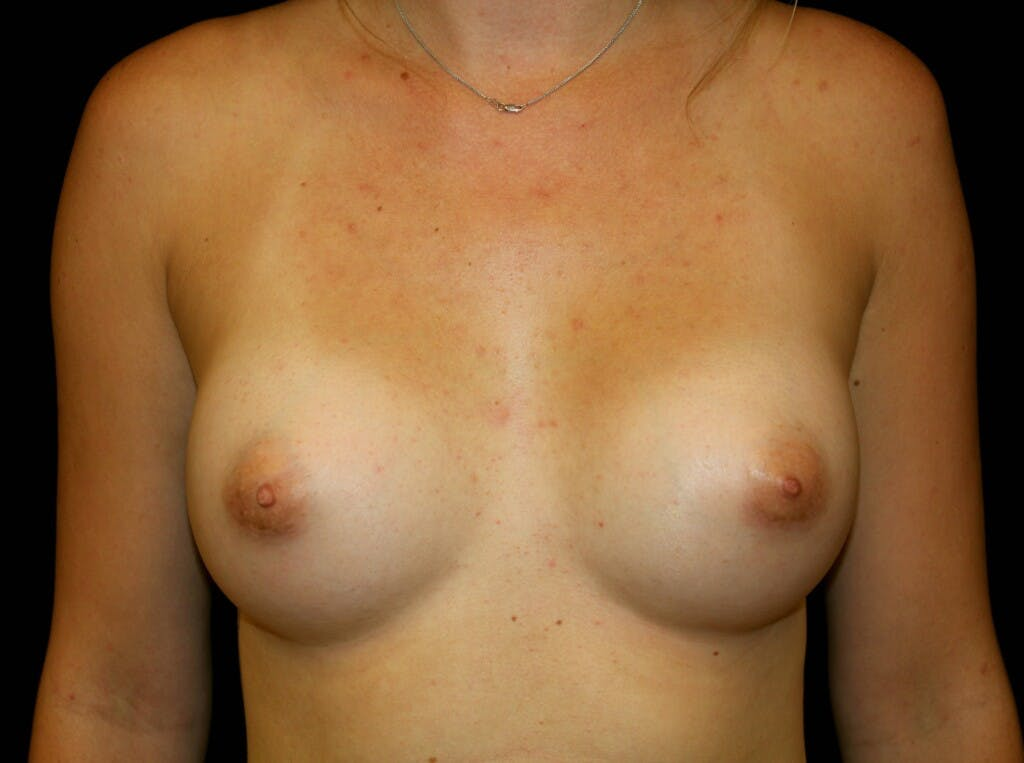 Breast Augmentation Gallery - Patient 39245585 - Image 2