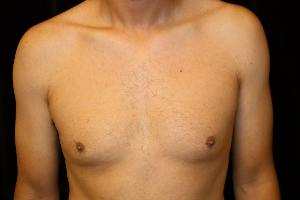 Gynecomastia Gallery - Patient 39245587 - Image 1