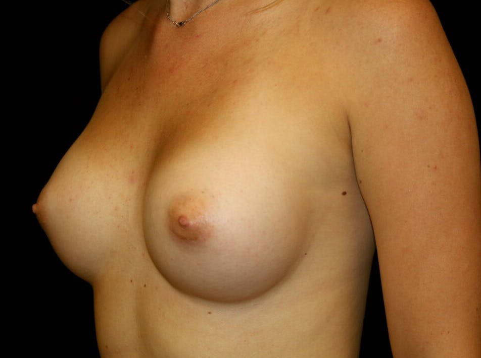 Breast Augmentation Gallery - Patient 39245585 - Image 4