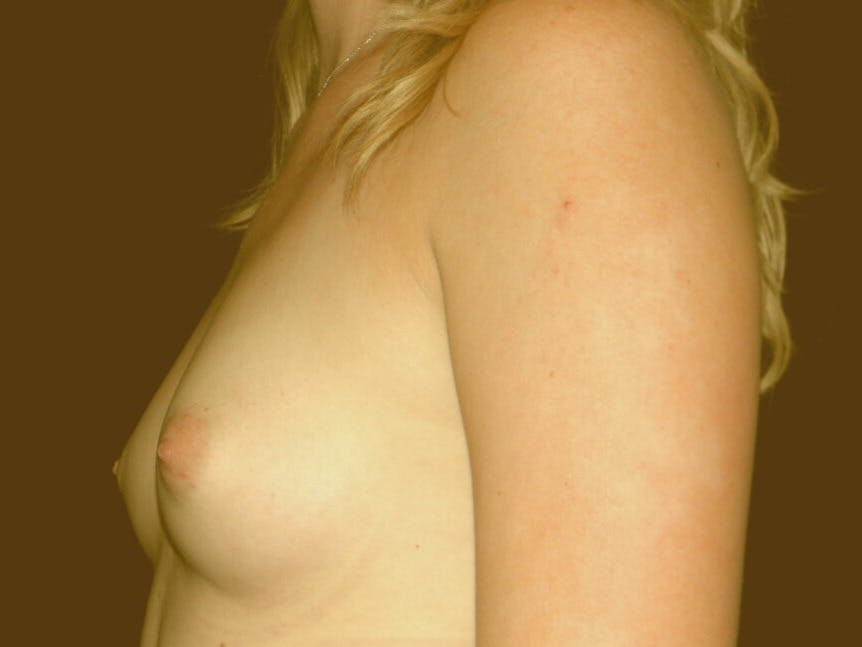 Breast Augmentation Gallery - Patient 39245585 - Image 5