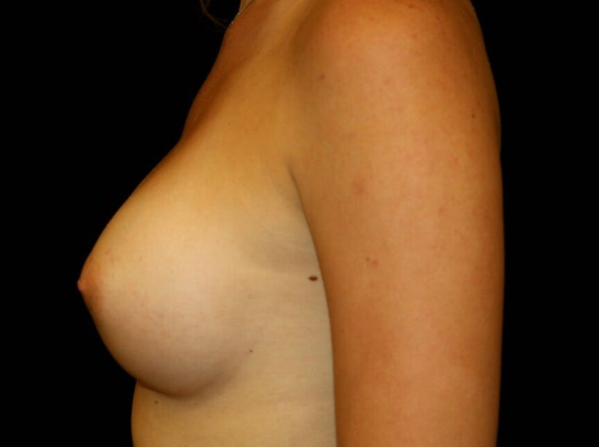 Breast Augmentation Gallery - Patient 39245585 - Image 6