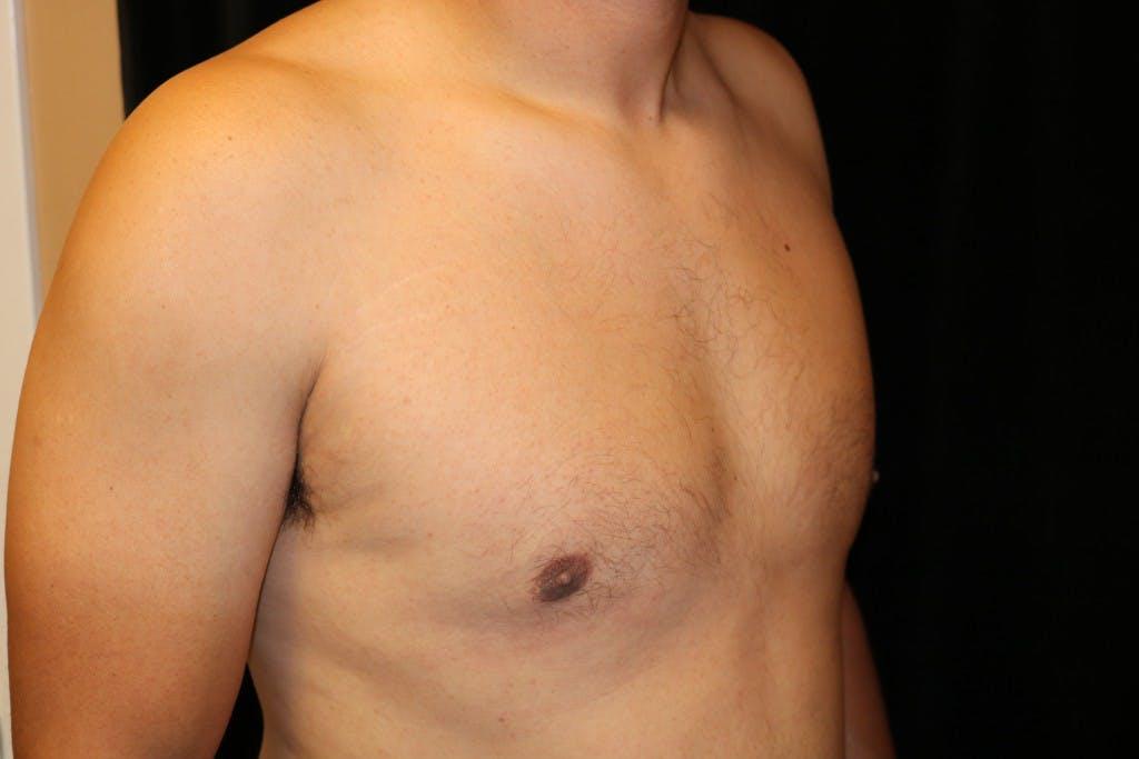 Gynecomastia Gallery - Patient 39245587 - Image 4