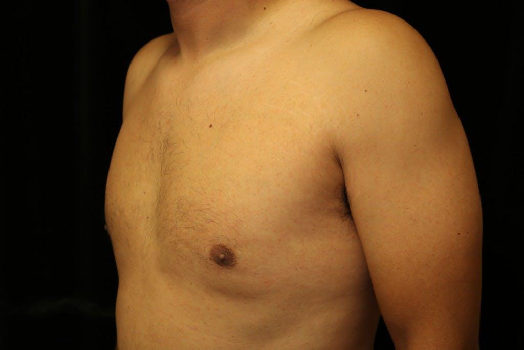 Gynecomastia Gallery - Patient 39245587 - Image 6