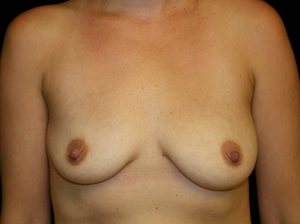 Breast Augmentation Gallery - Patient 39245590 - Image 1