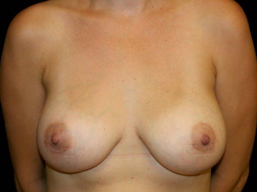 Breast Augmentation Gallery - Patient 39245590 - Image 2
