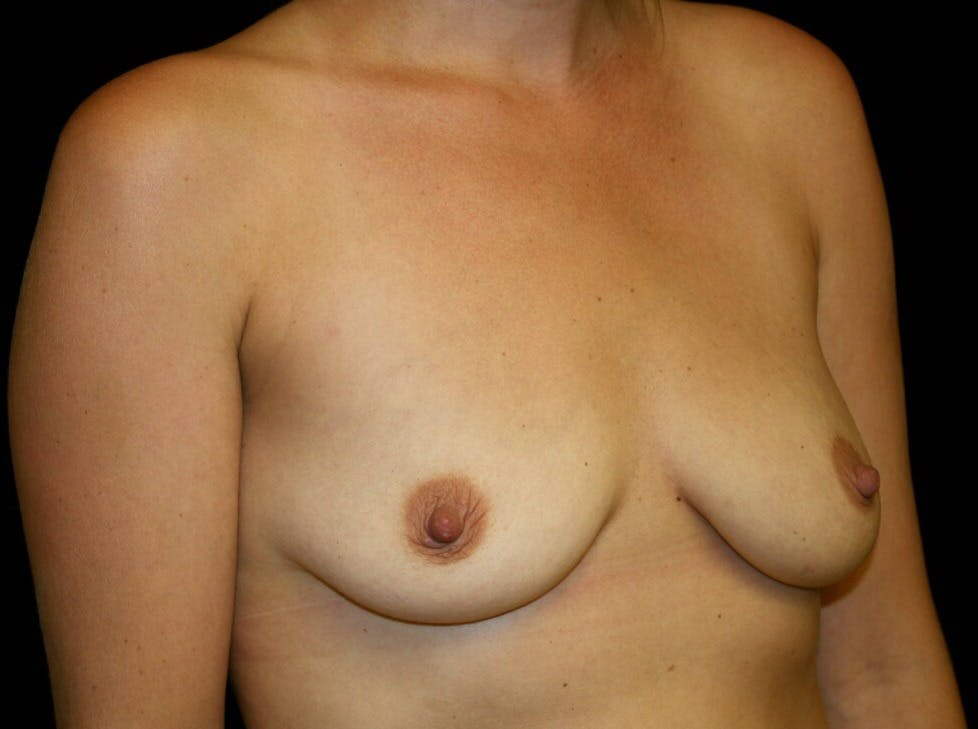 Breast Augmentation Gallery - Patient 39245590 - Image 3