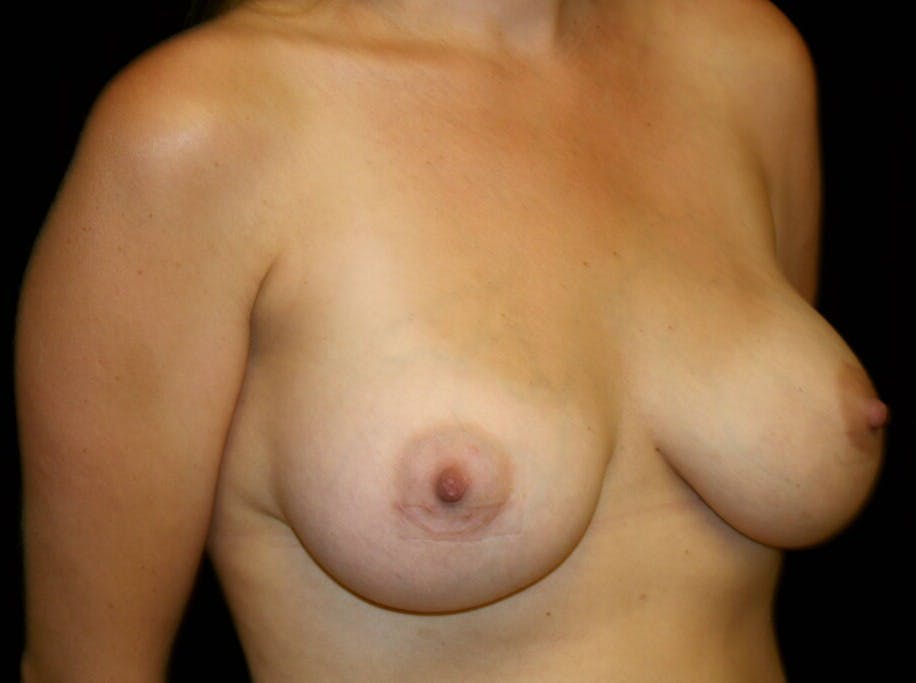 Breast Augmentation Gallery - Patient 39245590 - Image 4