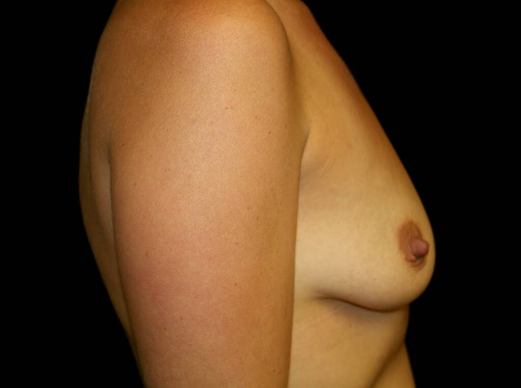 Breast Augmentation Gallery - Patient 39245590 - Image 5