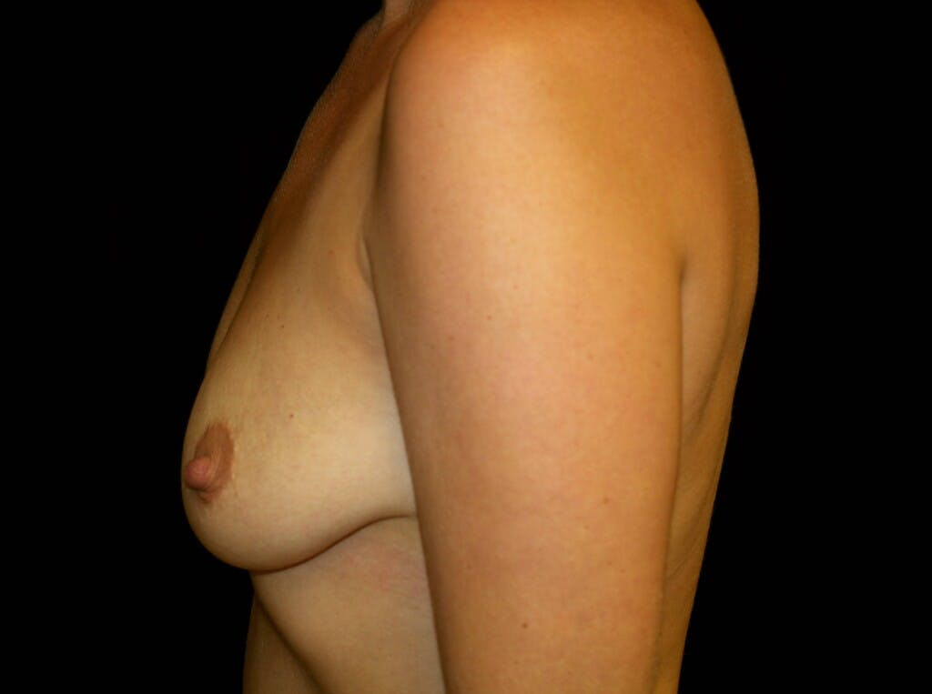 Breast Augmentation Gallery - Patient 39245590 - Image 7
