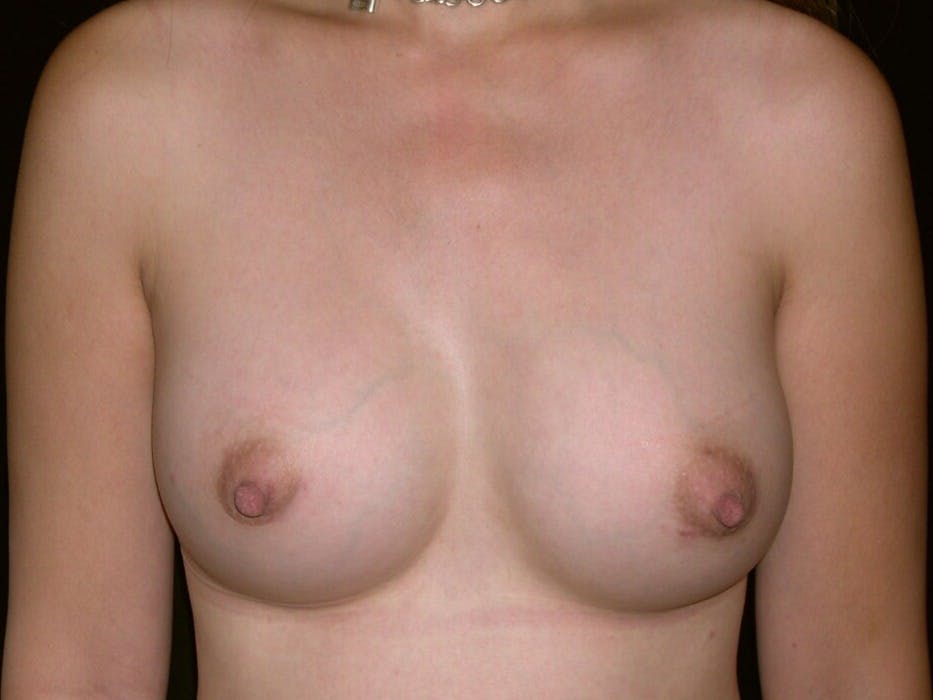 Breast Augmentation Gallery - Patient 39245596 - Image 2