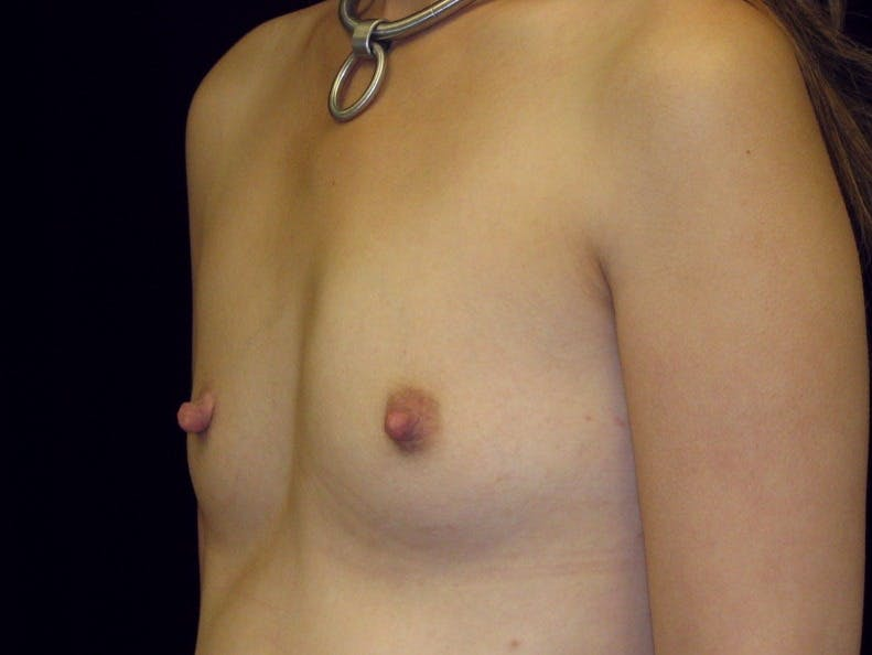 Breast Augmentation Gallery - Patient 39245596 - Image 3