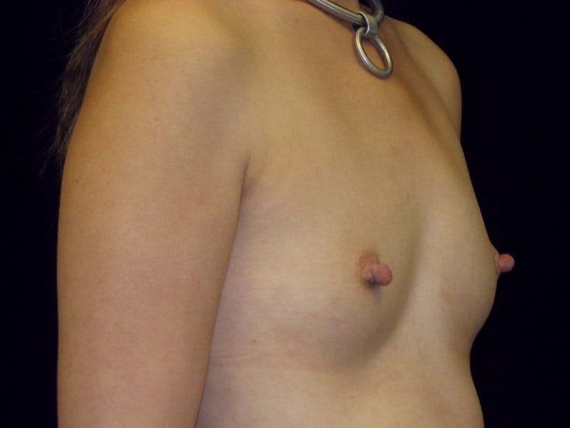 Breast Augmentation Gallery - Patient 39245596 - Image 7