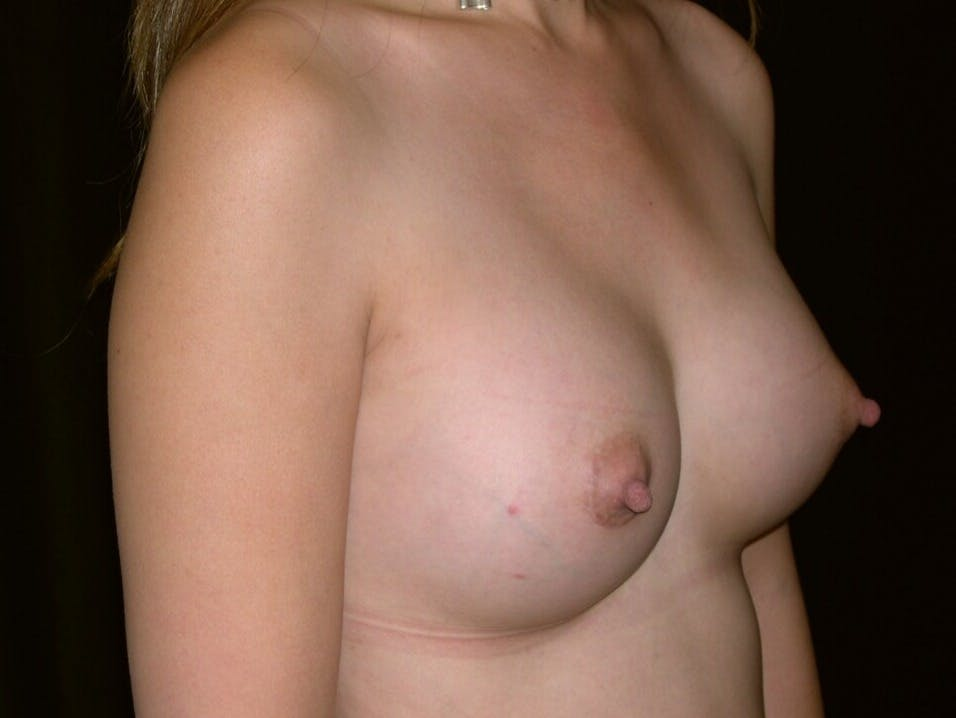 Breast Augmentation Gallery - Patient 39245596 - Image 8