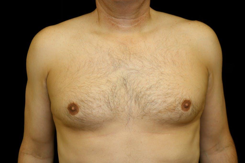 Gynecomastia Gallery - Patient 39245597 - Image 1