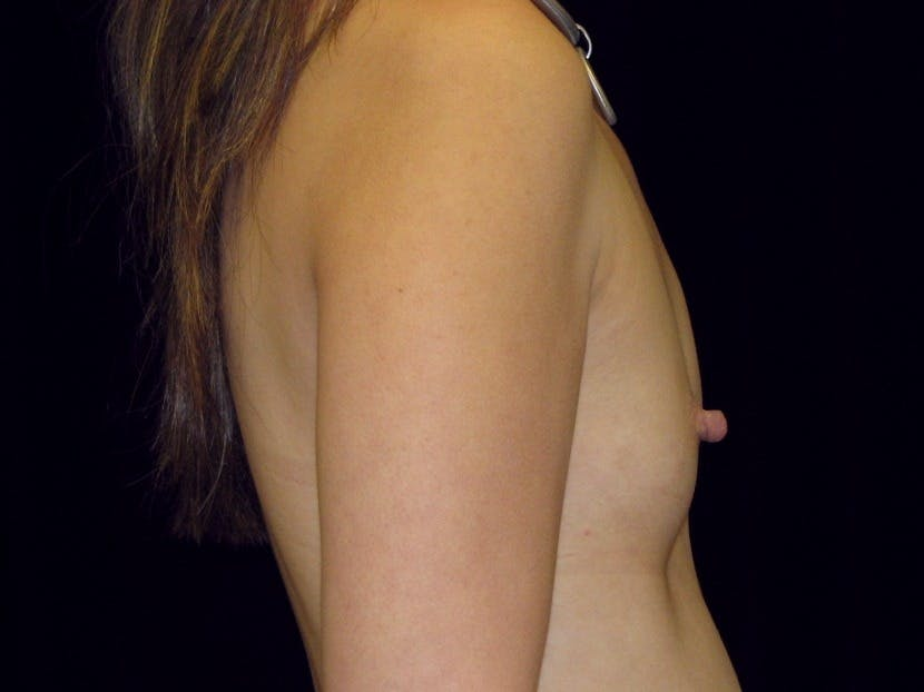 Breast Augmentation Gallery - Patient 39245596 - Image 9