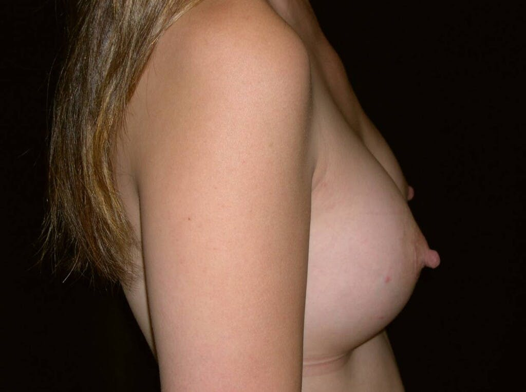Breast Augmentation Gallery - Patient 39245596 - Image 10