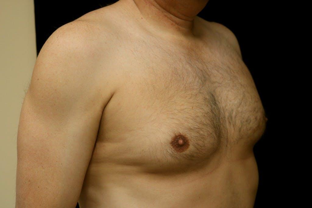 Gynecomastia Gallery - Patient 39245597 - Image 3