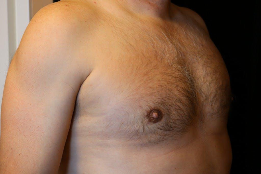 Gynecomastia Gallery - Patient 39245597 - Image 4