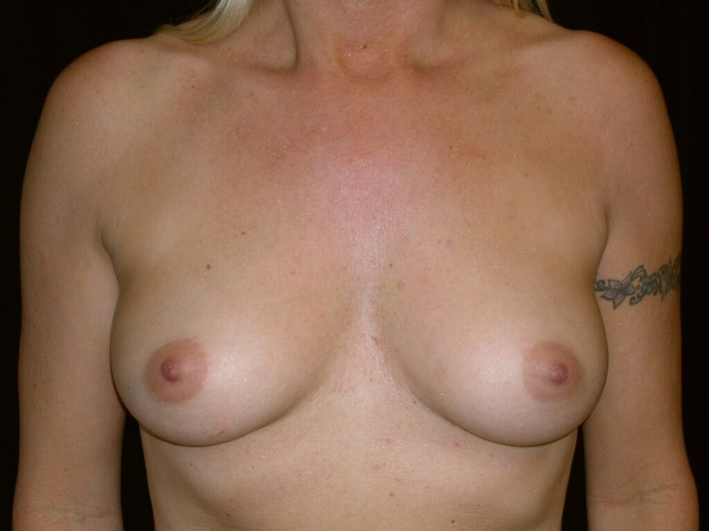 Breast Augmentation Gallery - Patient 39245598 - Image 1