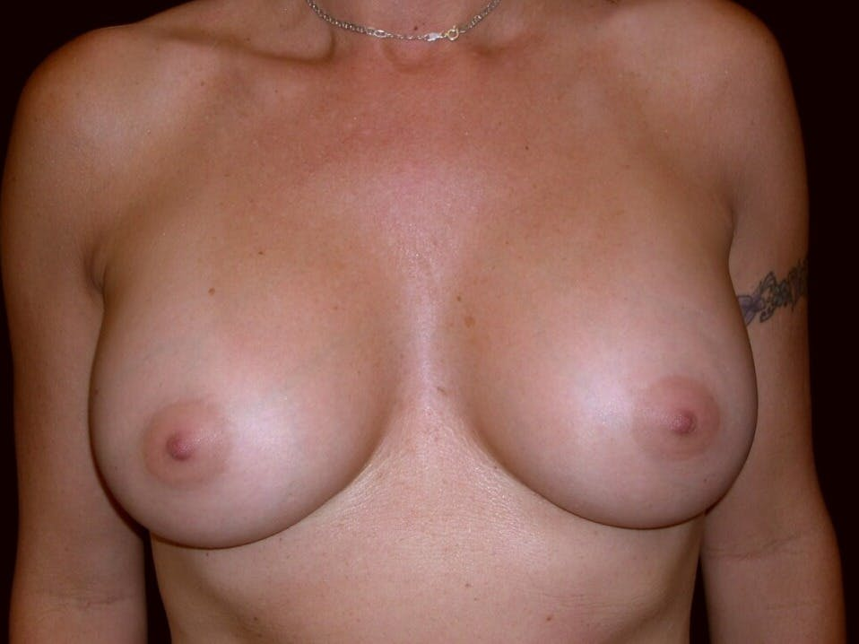 Breast Augmentation Gallery - Patient 39245598 - Image 2