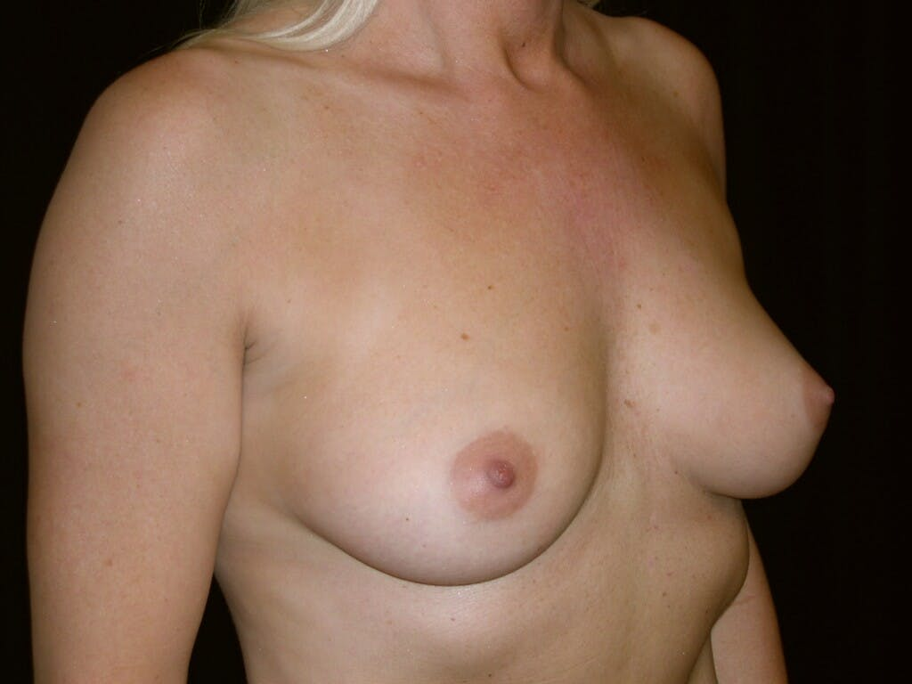 Breast Augmentation Gallery - Patient 39245598 - Image 3